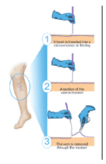 Microphlebectomy is a method of surgical removal of surface veins.