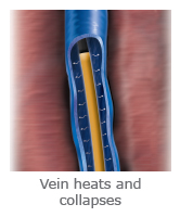 In Radiofrequency Ablation vein treatment the vein heats and collapses